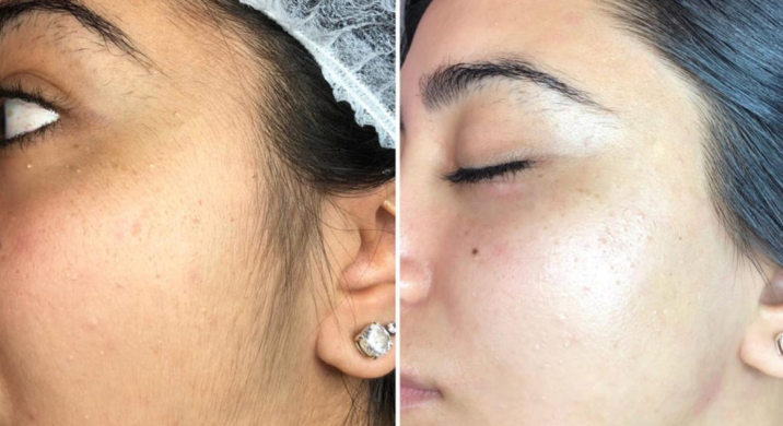 Dermaplaning With Oil And Benefits
