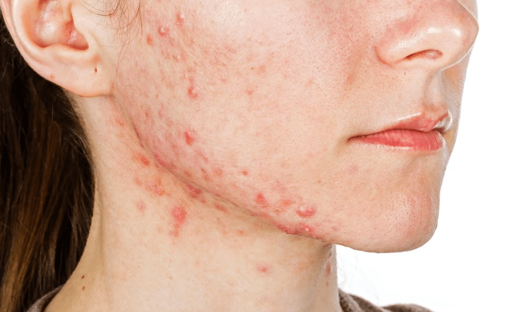Fungal Acne Symptoms And Treatment